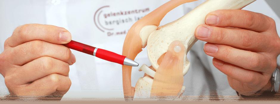 Behandlungsbereiche im Gelenkzentrum Bergisch Land: Knie – Krankheitsbilder und Informationen zu Operationen und Konservativen Therapien