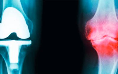 Gute Endoprothetik-Versorgung – dennoch gilt: Gelenkerhalt vor Gelenkersatz